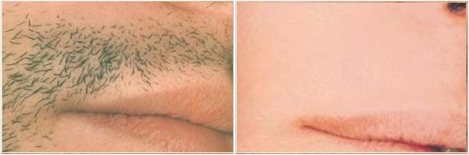 Upper lip treatment electrolysis
