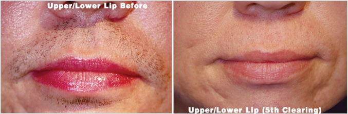 Upper low lip electrolysis