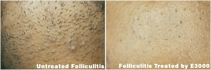 folliculitis treatment electrolysis
